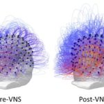Nerve implant 'restores consciousness' to man in persistent vegetative state
